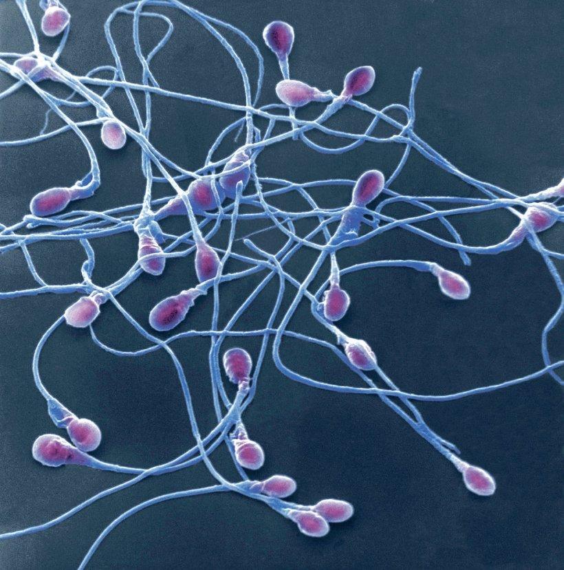 1009217-img-spermie